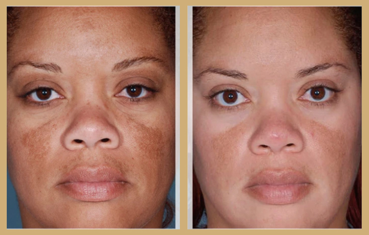 skin-before-&-after-gallery-real-patients-real-results-in-atlanta-vegan-med-spa
